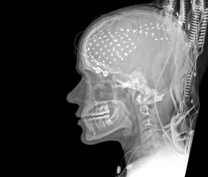 brain-electrodes